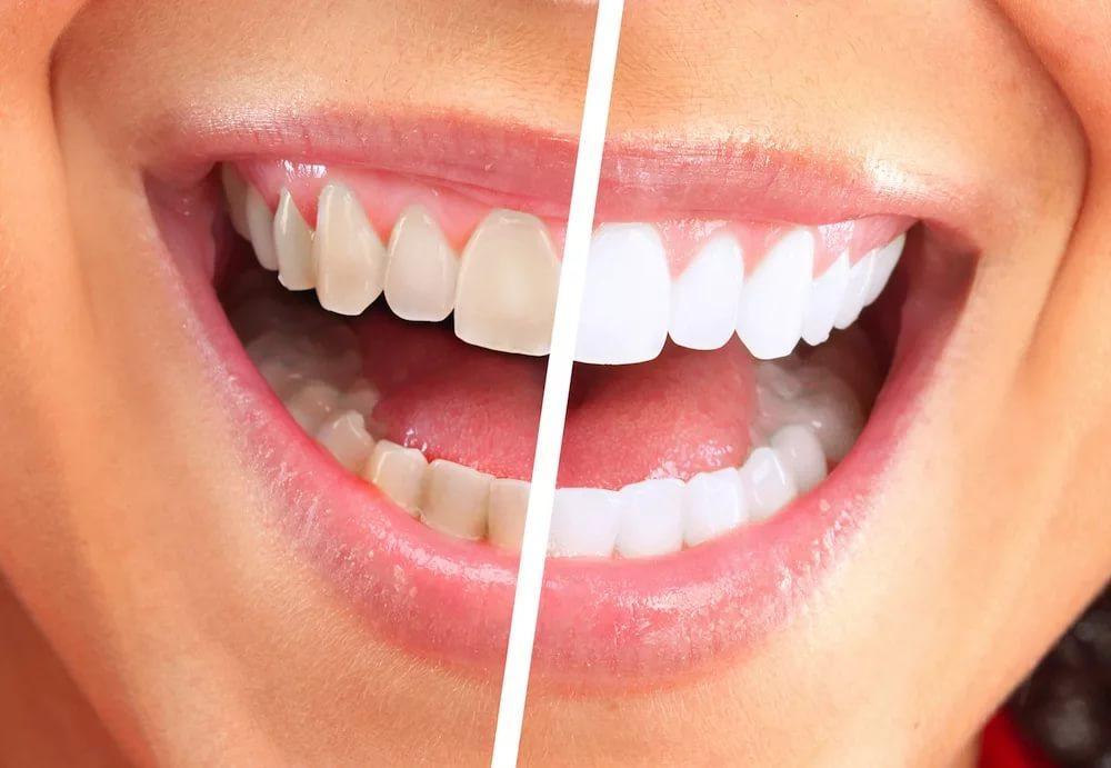 Разрушаем мифы: здоровые зубы должны быть белыми